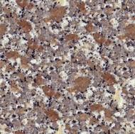 Rosa Sardo Limbara Granite